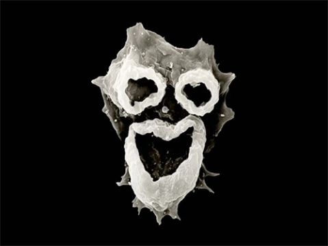 The feeding structures of the amoeba Naegleria fowleri have a face-like appearance. Source: Image by D.T. John & T.B. Cole, Visuals Unlimited via National Geographic